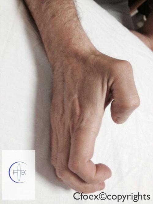 ¿Qué es un dedo en gatillo o dedo en resorte?